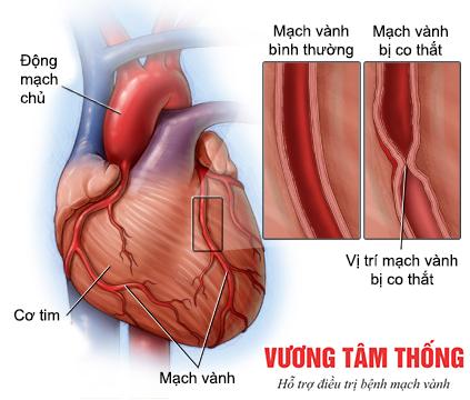 Hình ảnh mạch vành bị co thắt